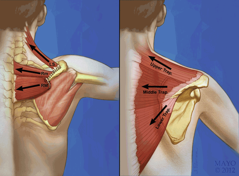 درمان درد پشت شانه و بازو ناشی از سندروم اسکپولوکوستال (Scapulocostal) با تزریق