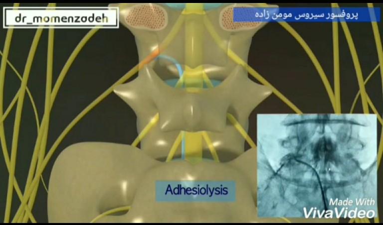 روشهای درمان بدون جراحی عارضه ی دیسک کمر و گردن