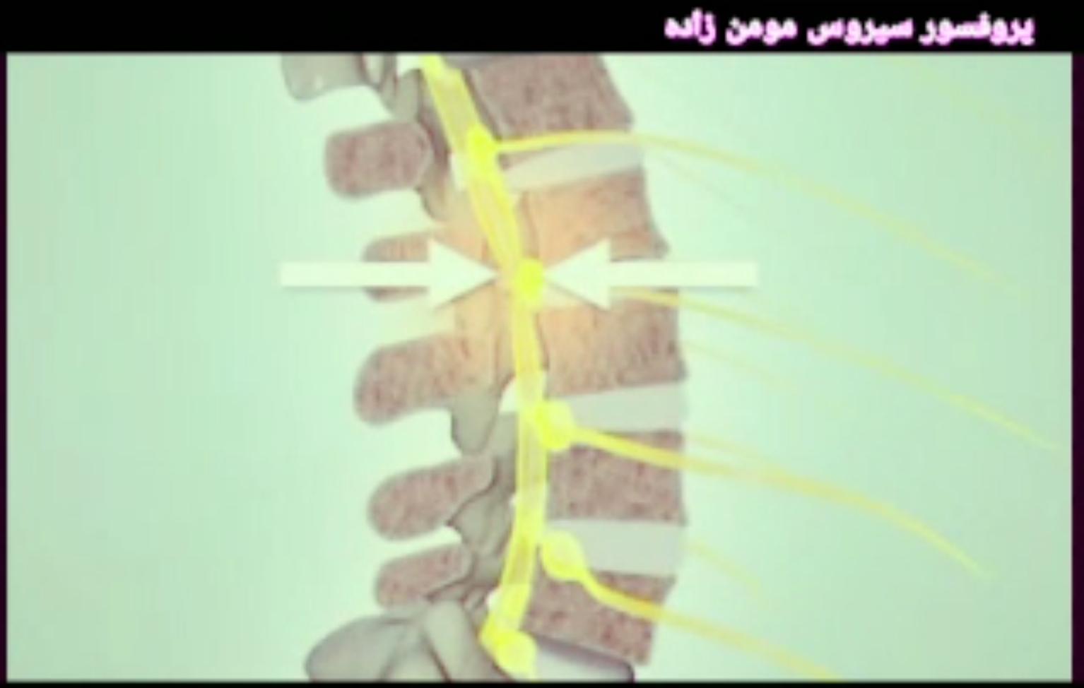 تنگی کانال نخاعی چگونه ایجاد می شود؟