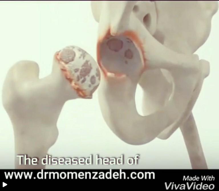 درمان آسیب لگن با جایگزینی مفصل ران و درمان لیزر تراپی پروفسور سیروس مومنزاده